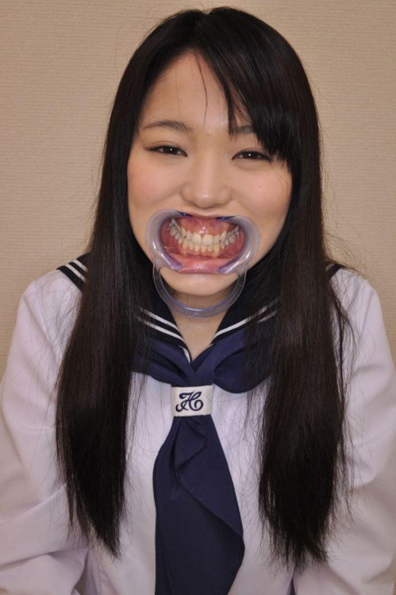 開口器 SM画像 5