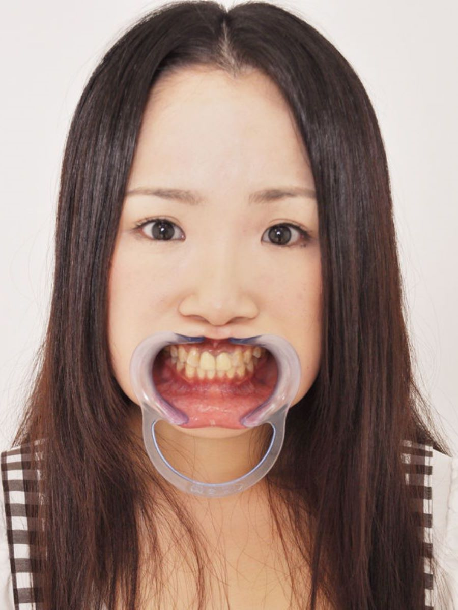 開口器 SM画像 31
