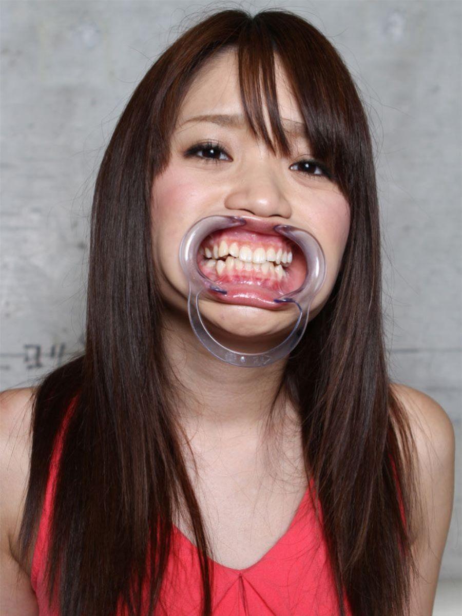 開口器 SM画像 59