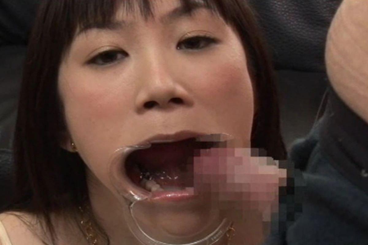 開口器 SM画像 61