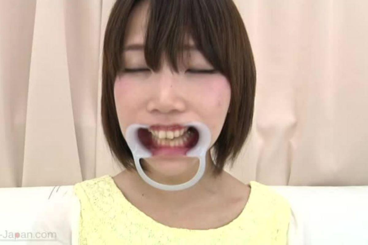 開口器 SM画像 64