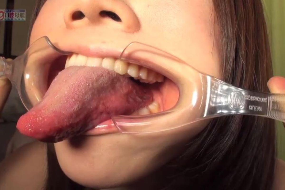開口器 SM画像 70